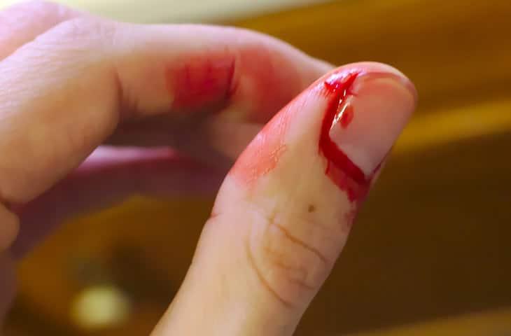 cicatriser