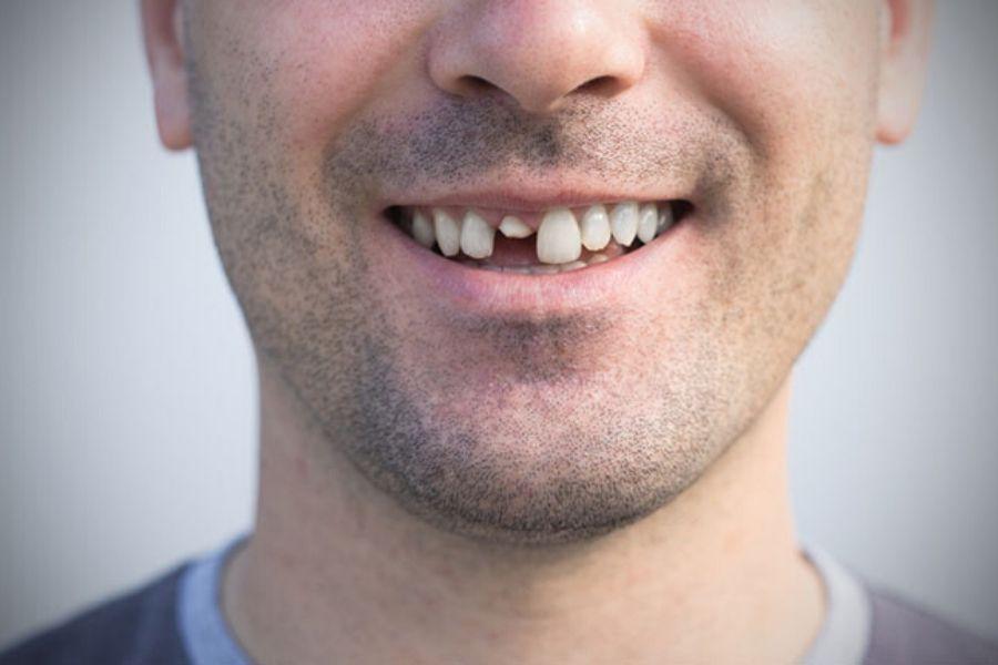 rever de dent
